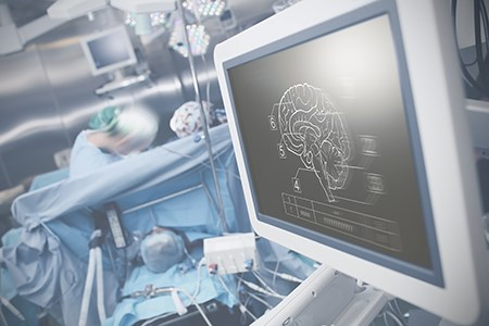 By 2025 there will be a deficit of Neurologists by 19 percent